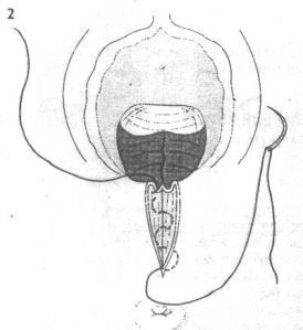Gambar 4. Jahitan Dinding Vagina telah Selesai dan Jahitan Otot ...